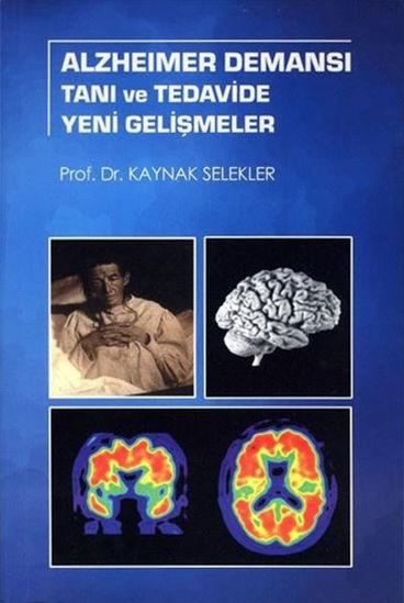 Alzheimer Demansı Tanı ve Tedavide Yeni Gelişmeler resmi