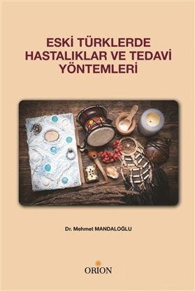 Eski Türklerde Hastalıklar ve Tedavi Yöntemleri resmi
